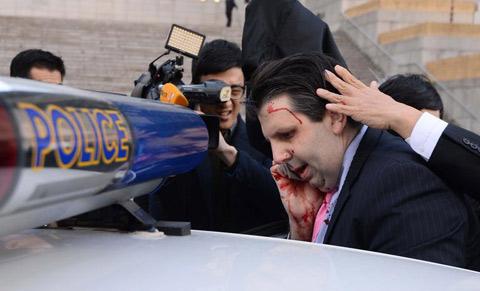 美驻韩大使遭袭脸部受重伤 嫌犯以此抗议美韩军演